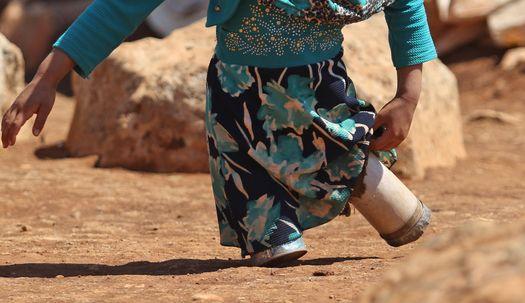 '참치캔 의족' 시리아 소녀, 두 발로 걷다!